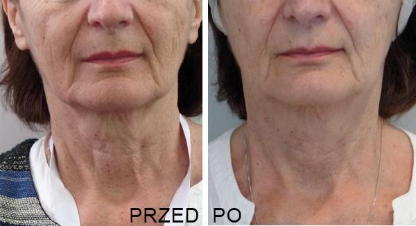 Rewitalizacja Anti-Aging - Profhilo - efekty PRZED i PO